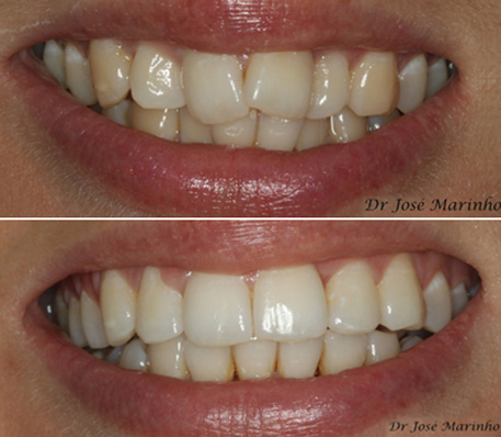 Invisalign Teeth Alignment