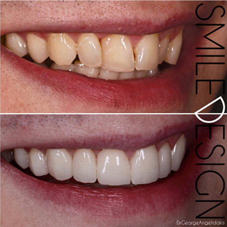 Veneers & Teeth Whitening